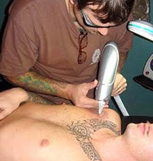 Tattoo Removal Companies