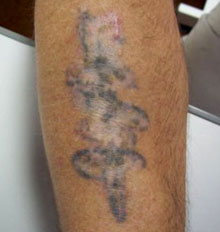 Tattoo Removal Post Treatment Facts