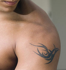 Tattoo Removal Reviews